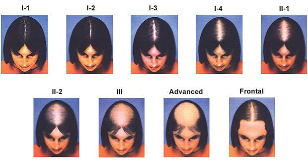 naisten hiustenlähtö päälaelta